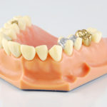 princeton-implants-composite-fillings