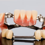 princeton-implants-dentures-partials