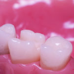 princeton-implants-porcelain-inlay
