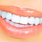 princeton-implants-porcelain-veneers