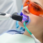 princeton-implants-teeth-whitening